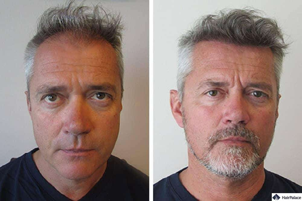 amazing hair transplant result