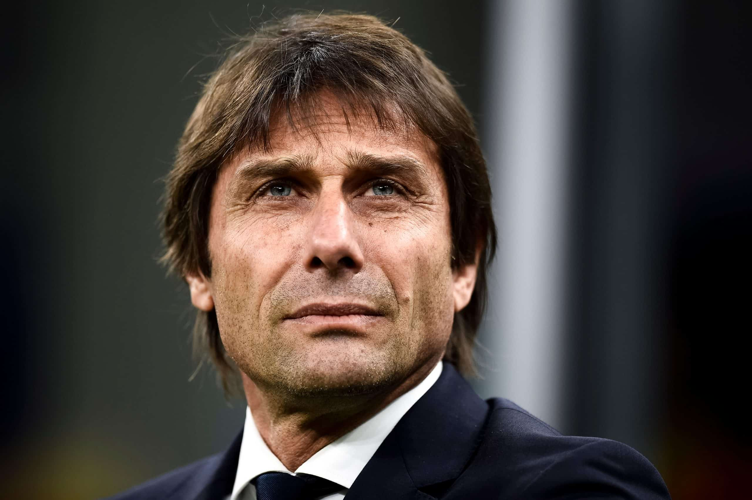 Antonio Conte before and after FUE2 hair transplant