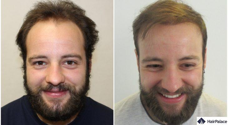 hair transplant result in Cambridge