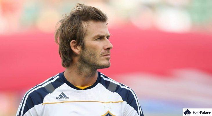 David Beckham possible hair transplant