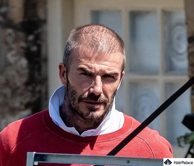 David Beckham hair transplant rumours 2020