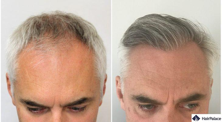 amazing hair transplant result in gloucester