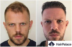 hair transplant result in oxford