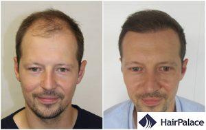 hair transplant result in Salisbury