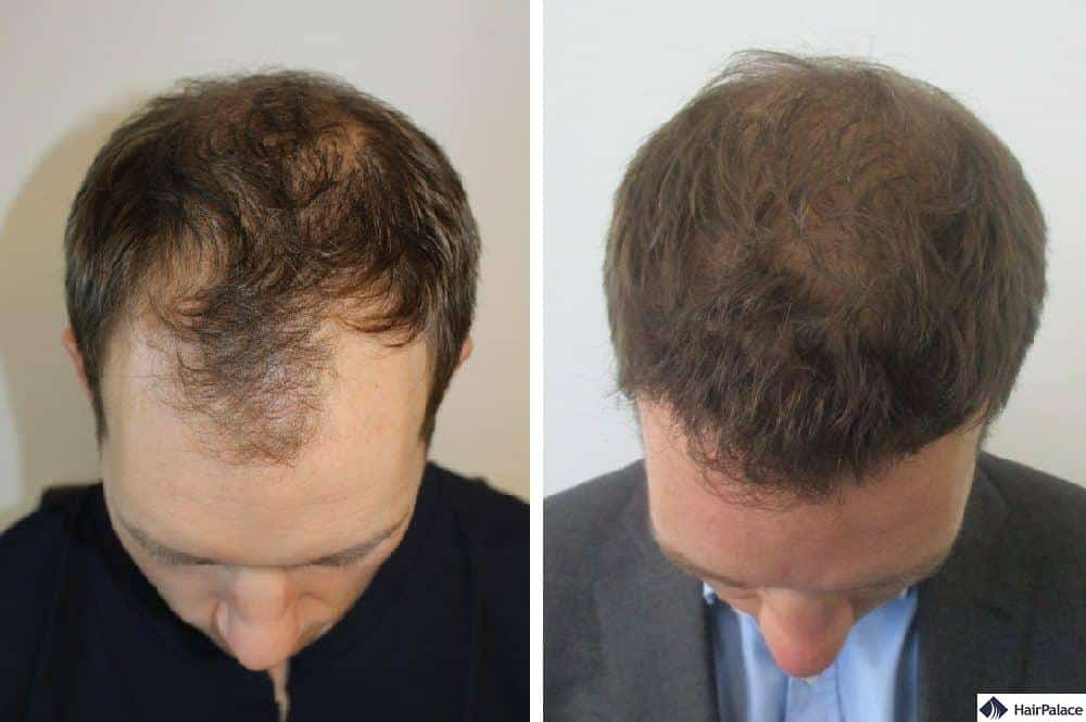 FUE hair transplant surgery with dense result