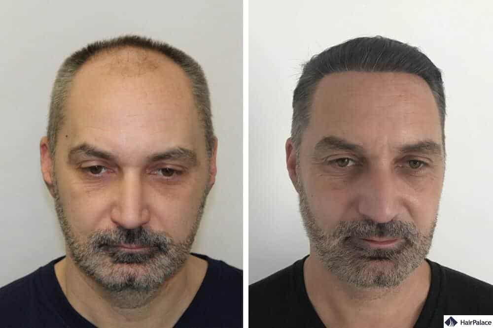 fue hair transplantation at hairpalace