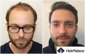 hair transplant result in Horsham