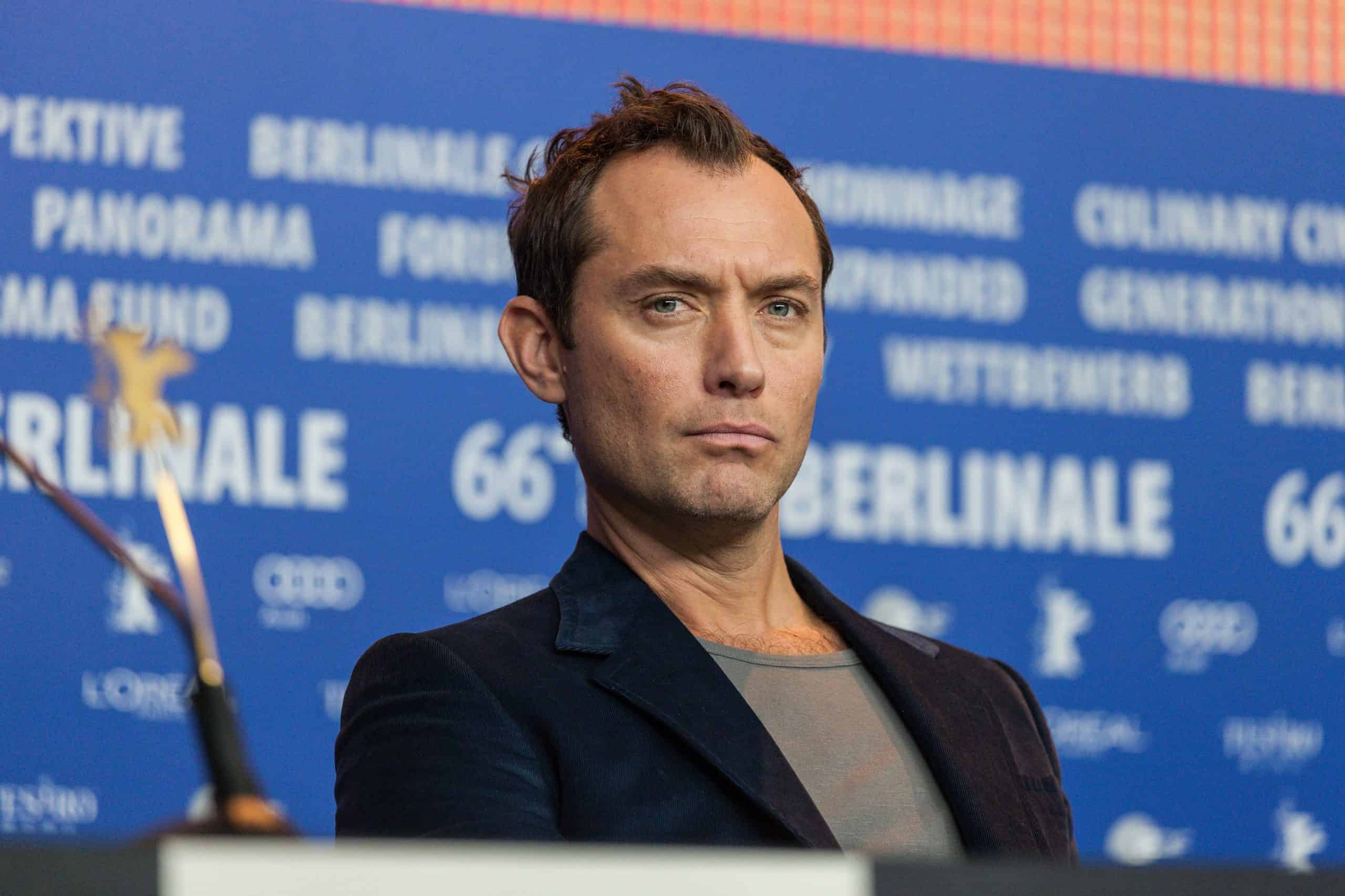 male pattern baldness actor Jude Law