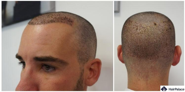 Maxim in the first week after his FUE2 transplant