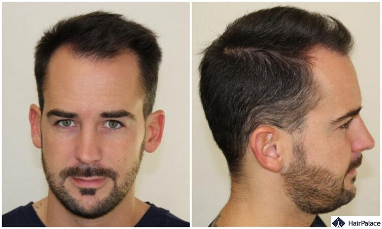 Maxim before after his hair transplant