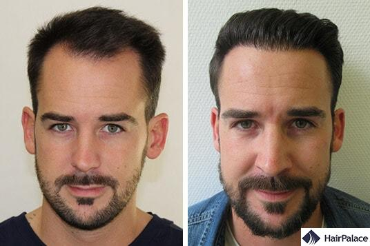 Maxim's successful hair transplant