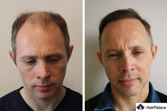 natural fue hair transplant result