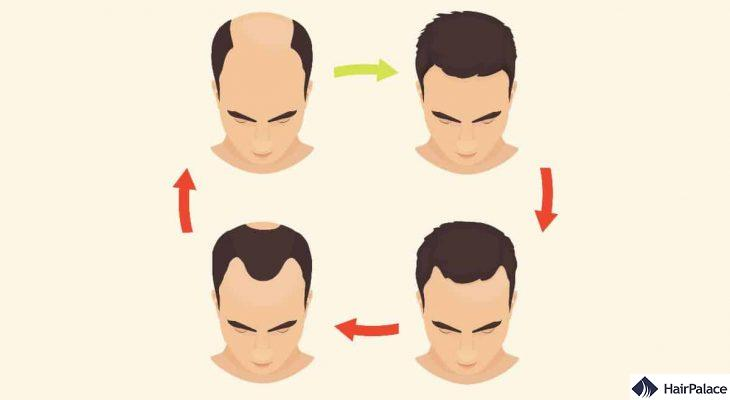 the norwood scale to classify your baldness