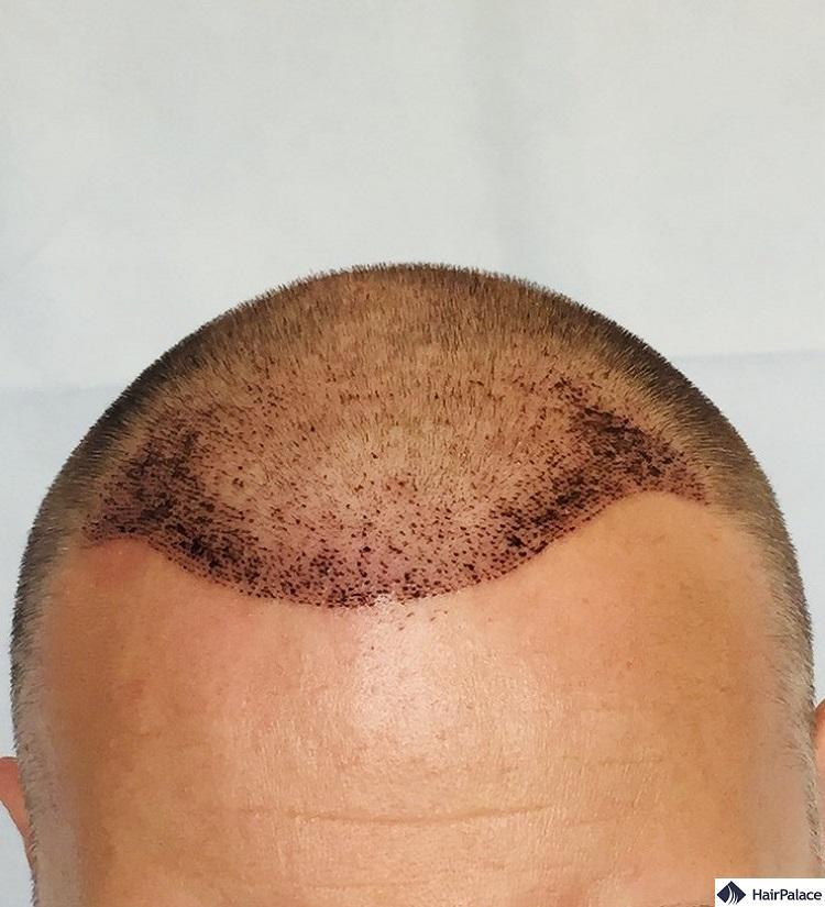 paul 1 week result after fue2 hair transplant