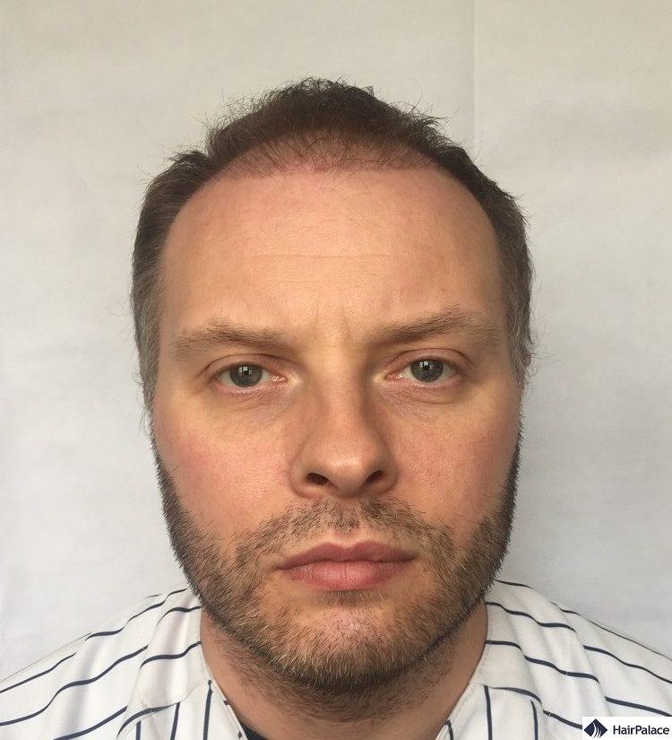 Paul 3 months hair transplant result