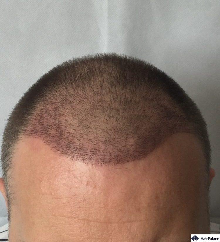 paul 3 weeks hair transplant
