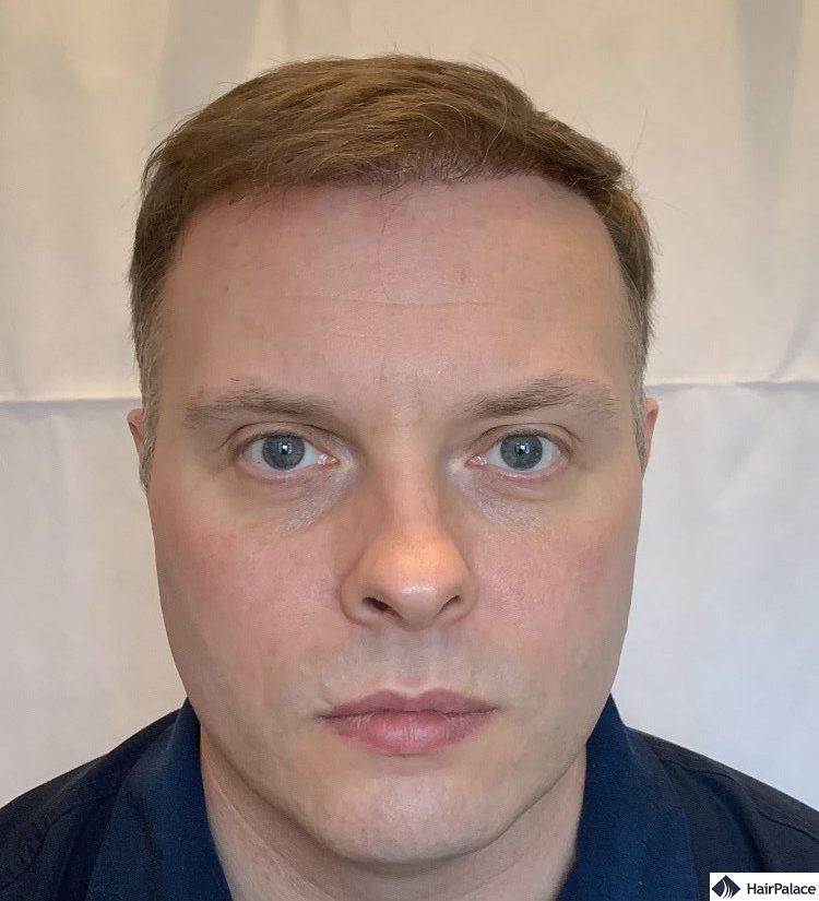 Paul 6 months hair restoration result