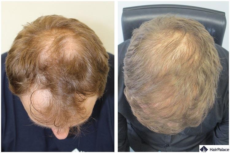 Paul FUE2 hair transplant result