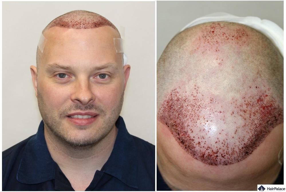 Paul hair transplant surgery