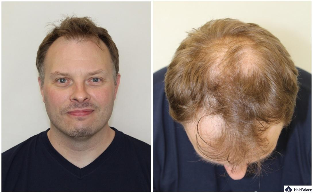 Paul in his hair transplant consultation