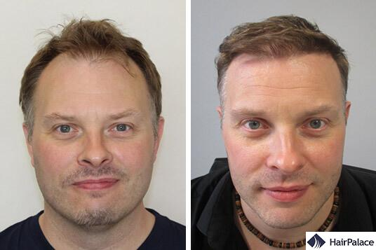 FUE2 hair transplant result before after Paul