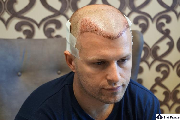 Peter's FUE2 hair transplantation