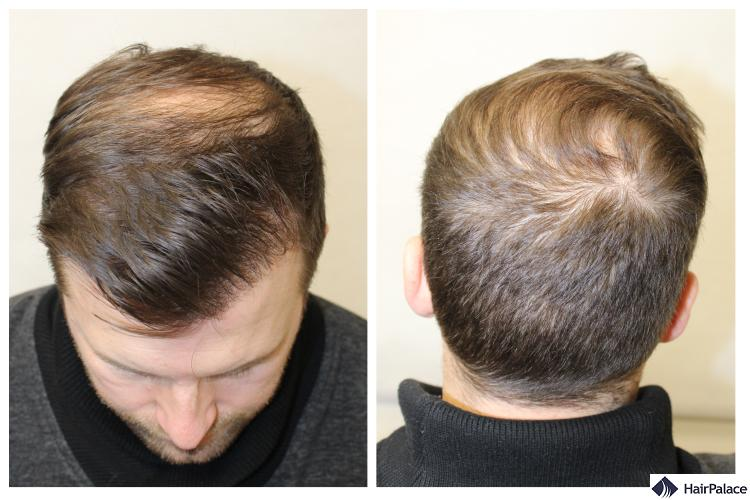 Peter's pattern baldness before the FUE2 surgery
