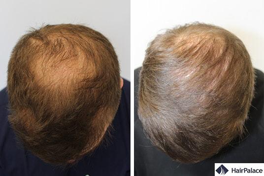 Successful hair transplant Peter