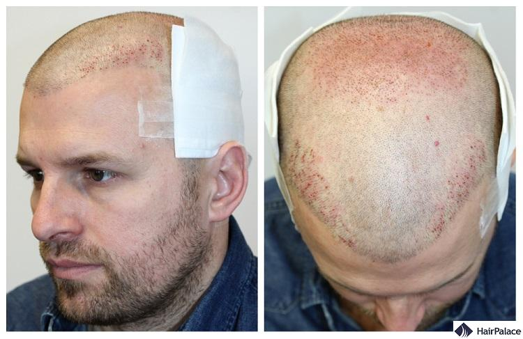 Peter's 2nd FUE2 treatment