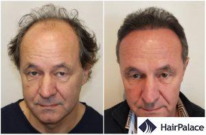 hair transplant result in preston
