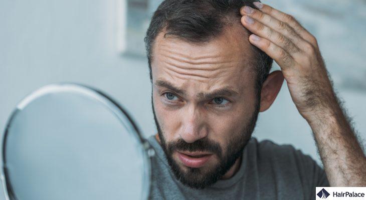how to stop balding