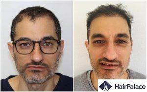 hair transplant result in Slough