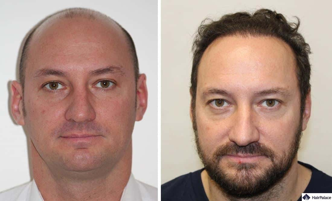 FUE2 hair implantation result