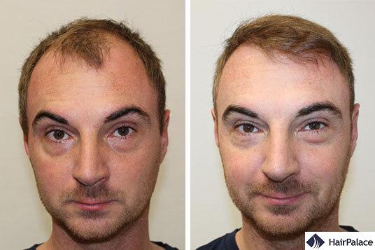 Alex hair transplant result