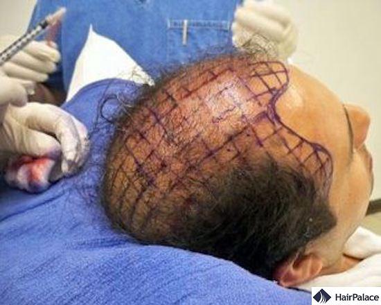 stem cell hair transplantation treatment