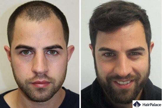 FUE hair implantation result