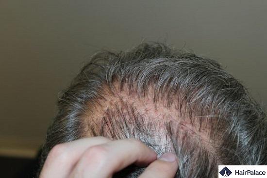 transplanted hair plugs