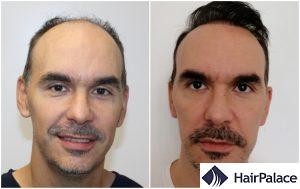 hair transplant result in Bath