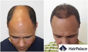 amazing hair transplant result in Ashford