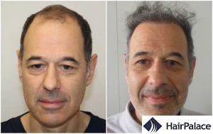 hair transplant result in Bracknell