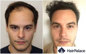 hair transplant result in Chichester