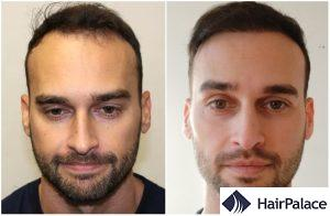 hair transplant result in St Helier Jersey