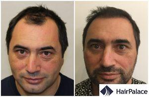 hair transplant result in Stirling