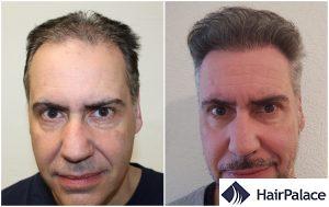 hair transplant result in Watford