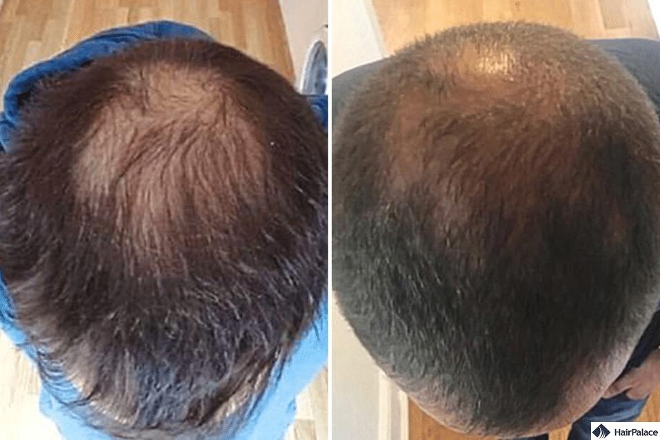 hair transplant stem cell uk surgery