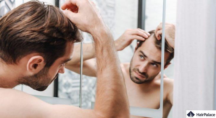 balding signs hair loss