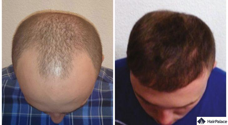 hair transplant result in Farnborough