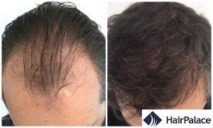 hair transplant result in Folkestone