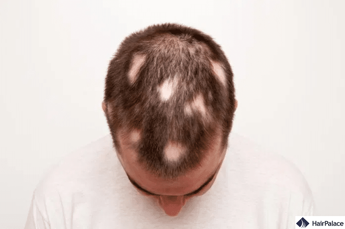 hair fall out in patches