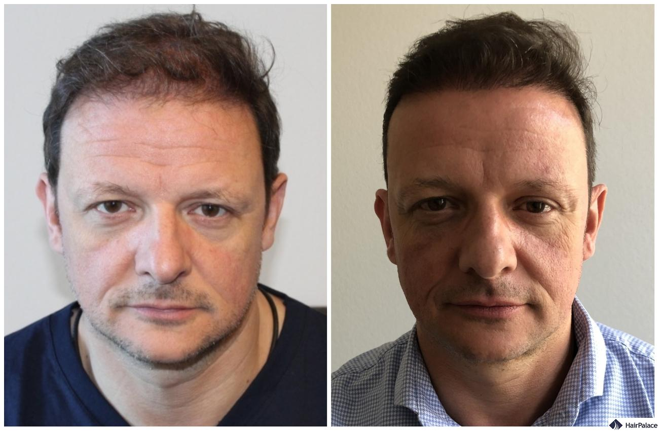 natural result with hair transplant in andover